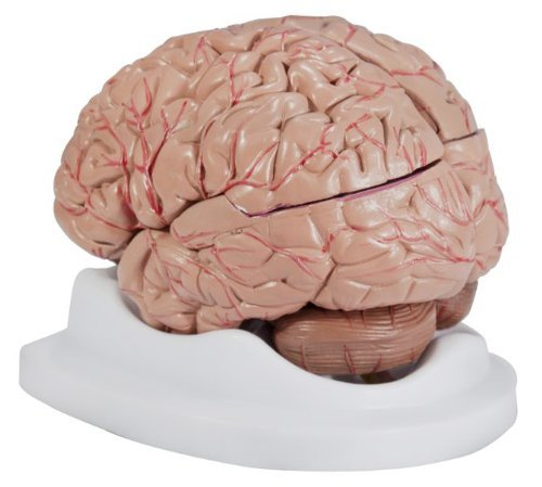 budget-brain-with-arteries-model-by-anatomical-chart-company