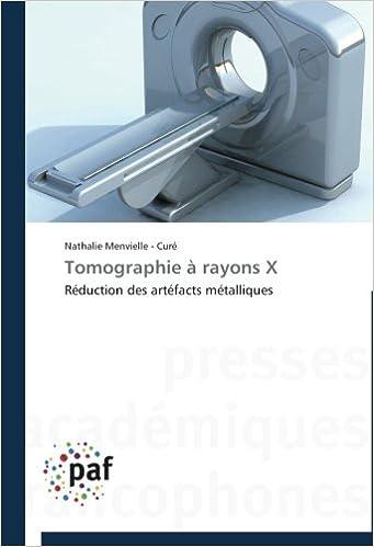 En ligne téléchargement Tomographie à rayons X: Réduction des artéfacts métalliques pdf ebook
