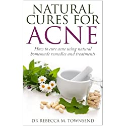 Natural cures for acne: How to cure acne using natural homemade remedies and treatments (Acne Cure, Acne Treatment, Acne no more) (Volume 1)