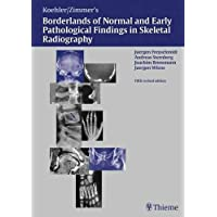 Borderlands of Normal and Early Pathologic Findings in