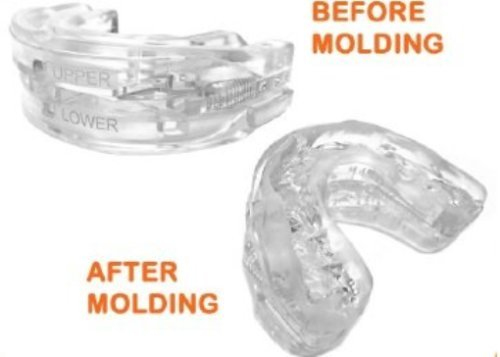Adjustable Mouthpiece Mouth Guard Sleep Aid Cure Bruxism Eliminator by Eliminator (Image #1)