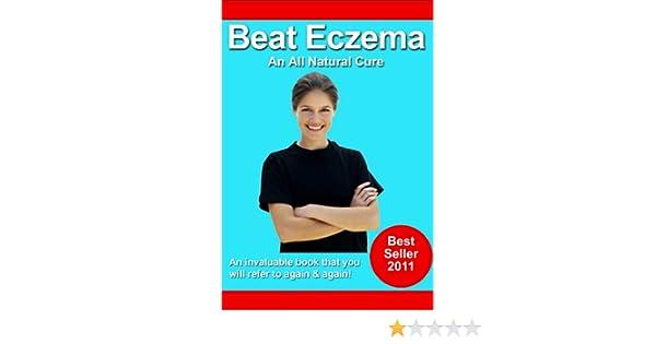 Beat Eczema Ebook