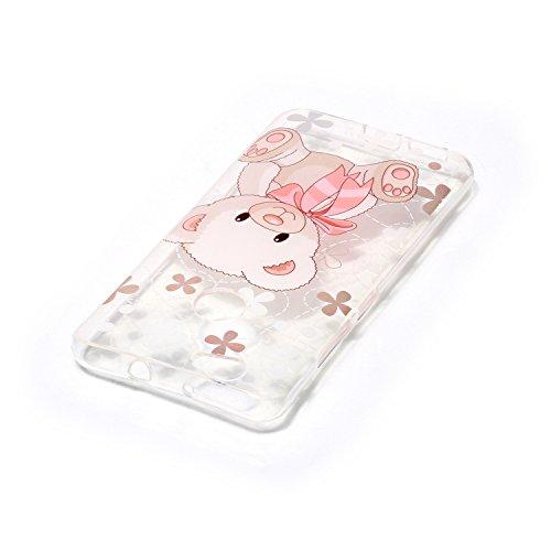 Qiaogle Teléfono Caso - Funda de TPU silicona Carcasa Case Cover para Xiaomi Mi5s (5.15 Pulgadas) - XS17 / Dream Catcher + windbell XS04 / Cute pink bear