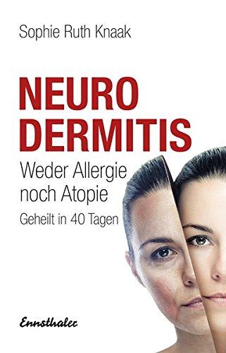 Neurodermitis: Weder Allergie noch Atopie - Geheilt in 40 Tagen