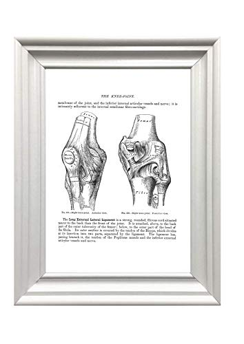 Din A4 Kunstdruck ungerahmt Anatomie H/üfte H/üftgelenk Becken Mensch Orthop/ädie Medizin Arzt Druck Poster Bild