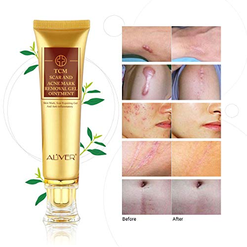 Removal Scars Stretch Women Relief product image