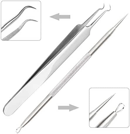 IBEET Acne Removal Tool, Comedone Extractor, Blackhead Remover Tool Tweezers Kit, Treatment for Pimple, Blemish, Whitehead Popping, Zit Removing