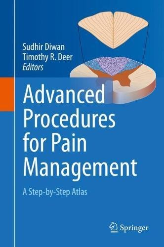 Advanced Procedures for Pain Management: A Step-by-Step Atlas