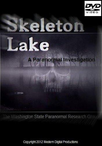 Skeleton Lake]()