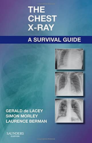 the chest x ray a survival guide 9780702030468 medicine health rh amazon com chest x ray survival guide pdf download chest x ray survival guide