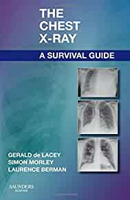 the chest x ray a survival guide 9780702030468 medicine health rh amazon com chest x ray survival guide amazon chest x-ray survival guide ebook