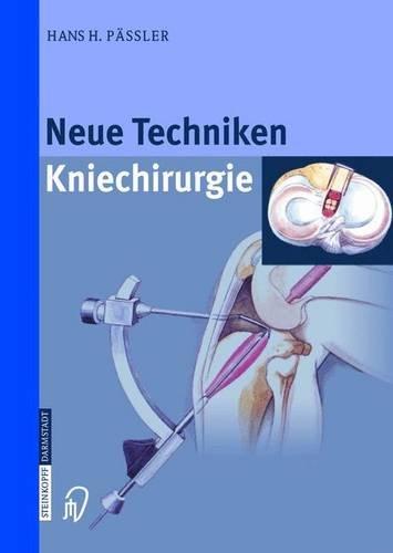 Neue Techniken - Kniechirurgie