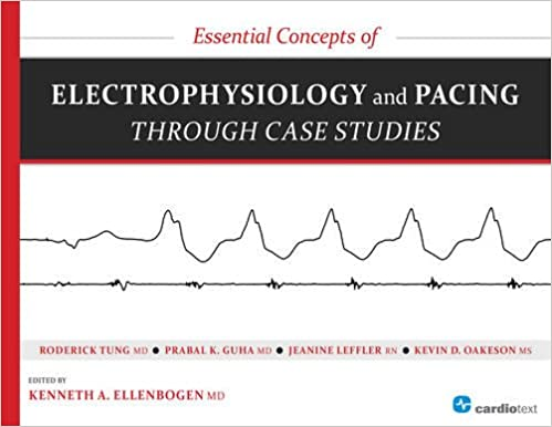 Essential concepts of electrophysiology and pacing through case essential concepts of electrophysiology and pacing through case studies 1st edition fandeluxe Image collections