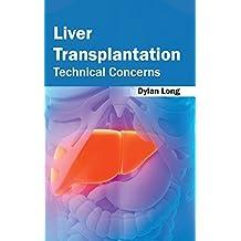 Liver Transplantation: Technical Concerns