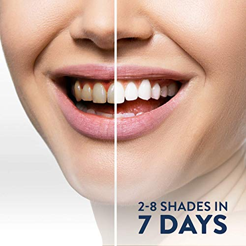 Smilestra Teeth Whitening Kit - 16X LED Teeth Whitening Light, 35% Carbamide Peroxide, (3) Gel Pens Made in USA.