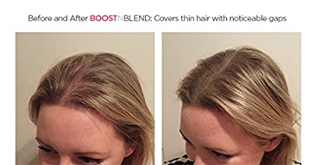 BOOSTnBLEND Medium Brown Hair Loss Concealer for Women with ...