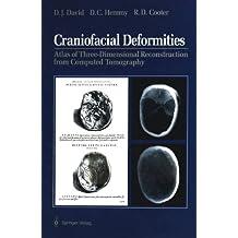 Craniofacial Deformities: Atlas of Three-Dimensional Reconstruction from Computed Tomography