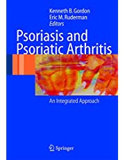 Psoriasis and Psoriatic Arthritis: An Integrated Approach