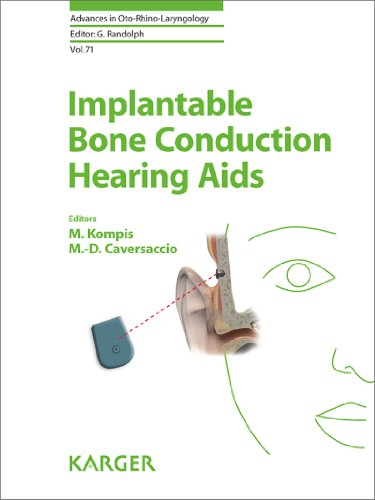 Download Implantable Bone Conduction Hearing Aids: 71 (Advances in Oto-Rhino-Laryngology) Pdf