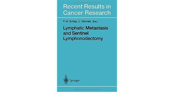 Lymphatic Metastasis and Sentinel Lymphonodectomy