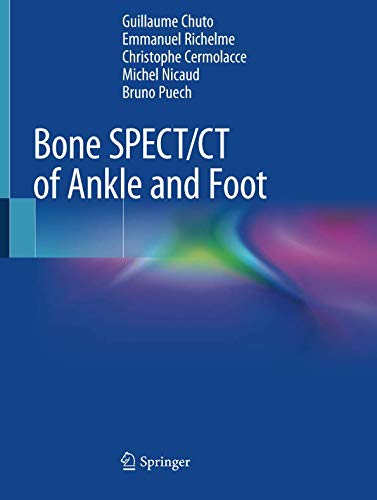 Bone SPECT/CT of Ankle and Foot-cover