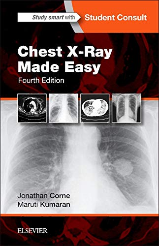 Where to find chest x ray book?