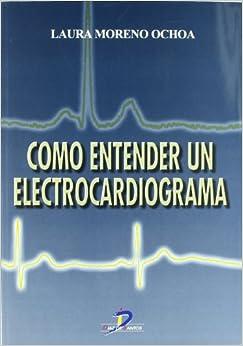 Cómo entender un electrocardiograma