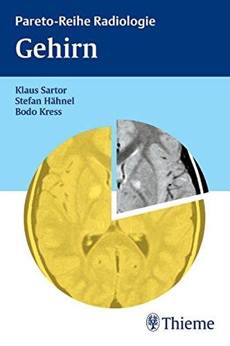 Gehirn (Pareto)