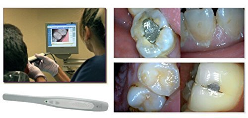 Doc.Royal Dental Intraoral Camera - High Quality, user-friendly Digital Video Imaging System for Intra Oral Photography - Aphrodite MD740 - Works with Windows XP/Vista/7/8, Slim Design, Crystal Clear Images, Easy USB Connection, 6 LED, 1.3 Mega Pixels - S by Doc.Royal (Image #3)