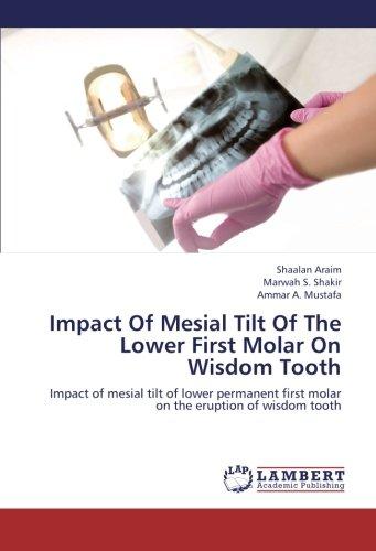 Impact Of Mesial Tilt Of The  Lower First Molar On Wisdom Tooth: Impact of mesial tilt of lower permanent first molar on the eruption of wisdom -
