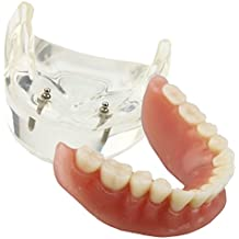 Dental Model Overdenture Inferior 2 Implants Demo for Studing and Teaching