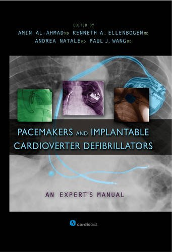 Pacemakers and Implantable Cardioverter Defibrillators: An Expert's Manual