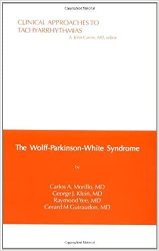 Clinical Approaches to Tachyarrhythmias, The Wolff-Parkinson-White Syndrome: Volume 6