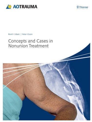 Concepts and Cases in Nonunion Treatment (1st 2011) [Marti & Kloen]