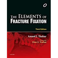 Elements of Fracture Fixation
