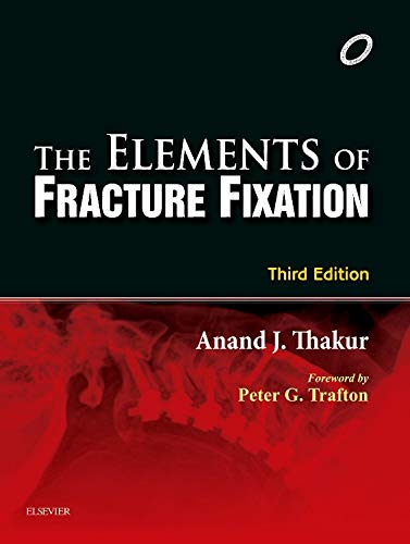 Elements of Fracture Fixation ebook