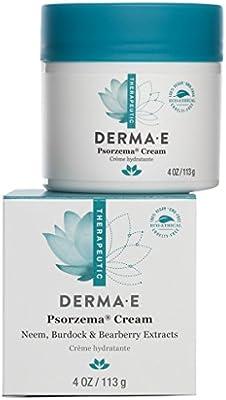 DERMA E Psorzema Dry Skin Cream, 4 oz