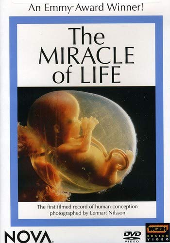 Dvd Science Miracles - NOVA - The Miracle of Life