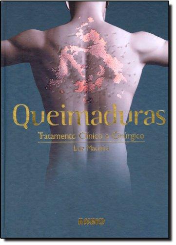 Queimaduras. Tratamento Clínico e Cirúrgico (Em Portuguese do Brasil) pdf epub