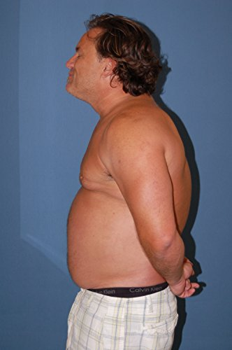 Naturopathic weight loss mississauga photo 2