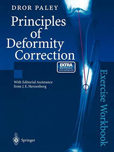 Principles of Deformity Correction - http://medicalbooks.filipinodoctors.org