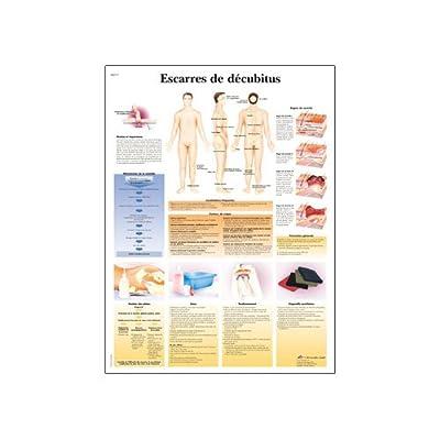 3B Scientific Glossy Paper Decubitus Ulcers Anatomical Chart