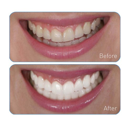 Go Smile Teeth Whitening System 20 Count Buy Online In
