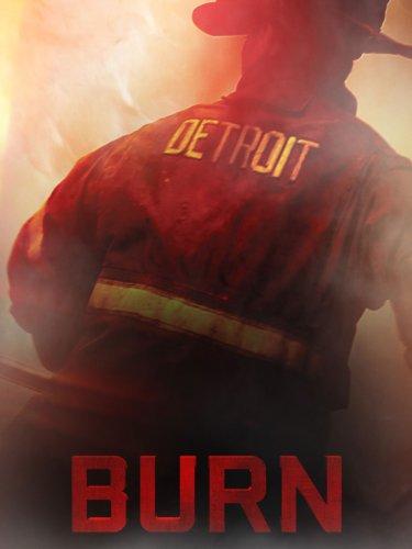 - Burn