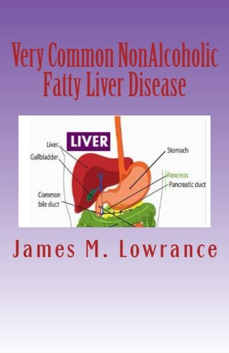 Common NonAlcoholic Fatty Liver Disease