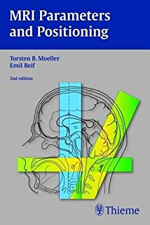 Handbook of MRI Scanning: 9780323068185: Medicine & Health