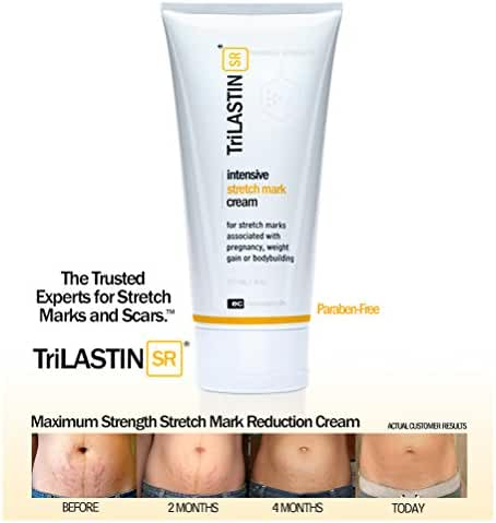 TriLASTIN-SR Maximum Strength Stretch Mark Cream - 5.5oz
