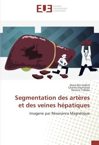 Segmentation des artères et des veines hépatiques: Imagerie par Résonance Magnétique (French Edition) ebook