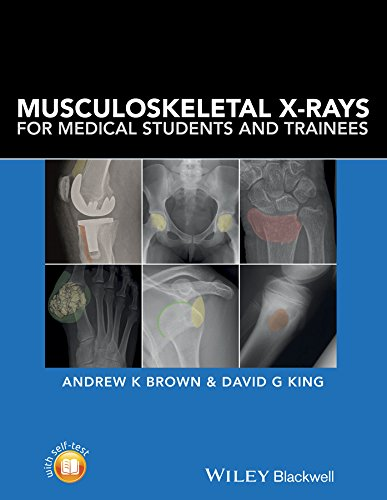 Musculoskeletal X Rays For Medical Students And Trainees