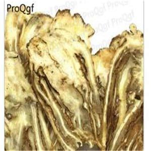 Fotcus - bonsai Amygdalus Angelica Cibotium Crataegus Campsis KADSURAE rainworm Stachys - (Color: 50g Angelica ()